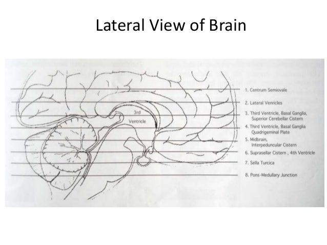 NORMAL ANATOMY…….A=Frontal Lobe, B= Frontal Bone (Superior Surface of Orbital Part), C= DorsumSellae, D=Basilar Artery E= ...