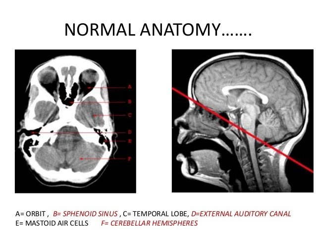 BASICS of CT Head
