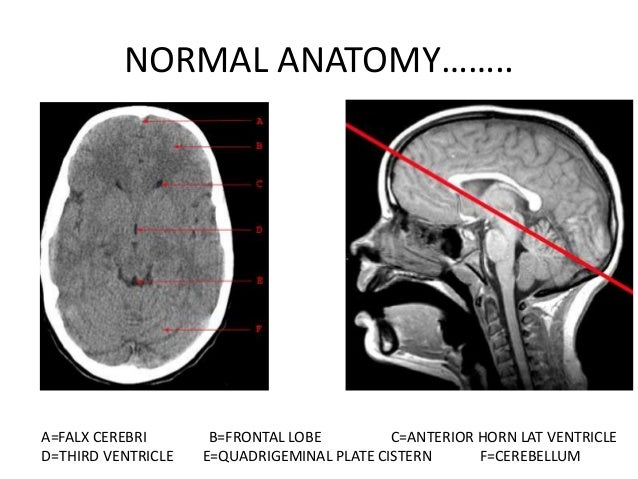 NORMAL ANATOMY……..A=GENU OF CORPUS CALLOSUM B=ANT HORN OF LATERAL VENTRICLE C=INT CAPSULED=THALAMUS     E=PINEAL GLAND   F...