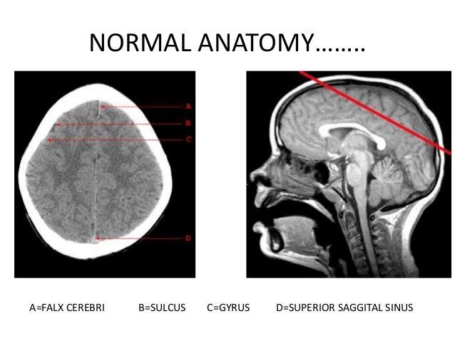 FrontalboneFalx cerebri   Central   sulcus               Parietal bone                Superior                saggital    ...