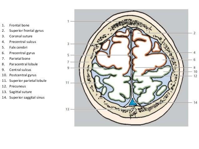 2 Frontal sinus5 Falx cerebri6 Caudate nucleus (head)9 Corpus callosum (genu)11 Lateral ventricle12 Third ventricle13 Cent...