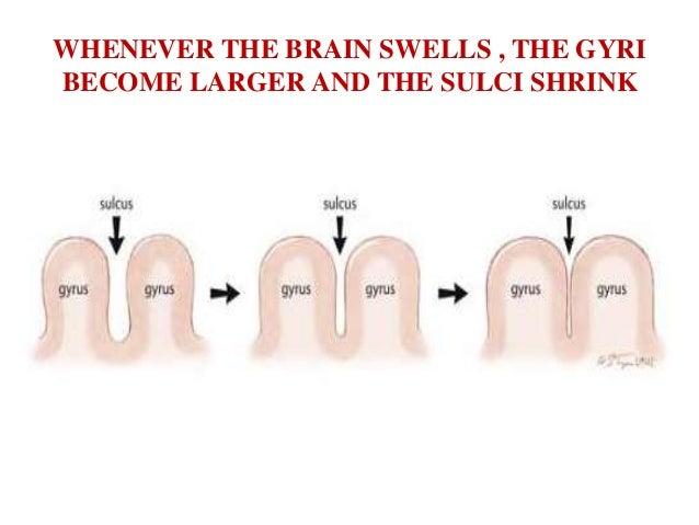 2 Frontal sinus3 Falx cerebri7 Corpus callosum (genu)13 External capsule14 Putamen15 Septum verum(precommissural septum)16...