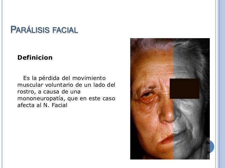 De Paralisis Facial