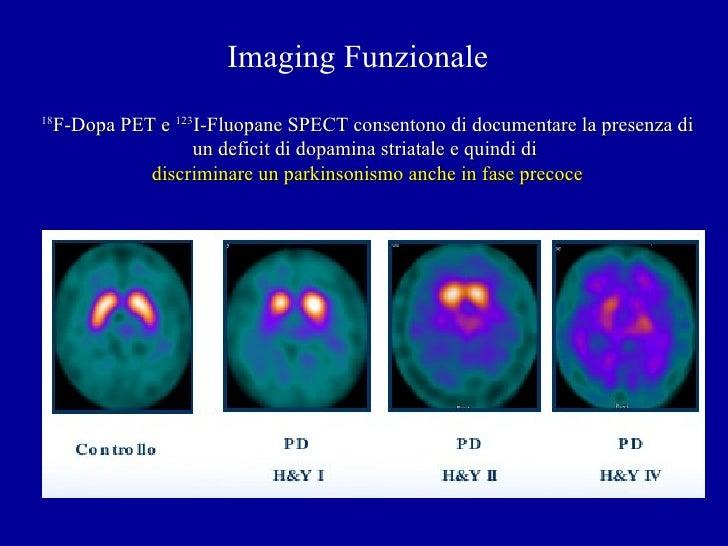 Midbrain SERT in degenerative parkinsonisms: A 123I-FP-CIT ...