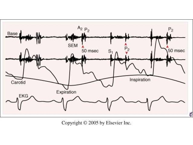first and second heart sounds