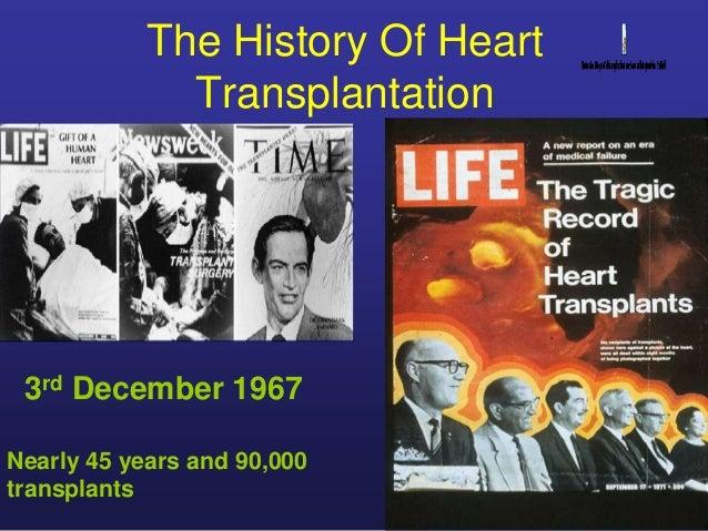 First human heart transplant