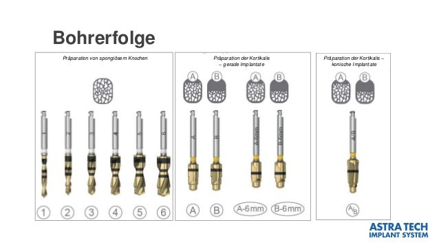 Bohrerfolge Präparation von spongiösem Knochen Präparation der Kortikalis – gerade Implantate Präparation der Kortikalis –...