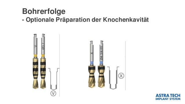 Bohrerfolge - Optionale Präparation der Knochenkavität V-Twist Drill – optional extra apical preparation – Length: 6–17 mm...