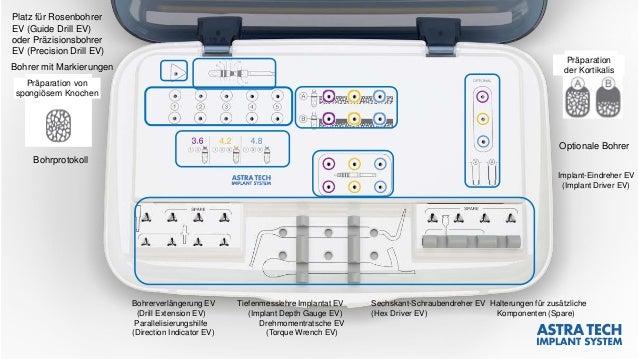 Bohrprotokoll Implant-Eindreher EV (Implant Driver EV) Optionale Bohrer Bohrerverlängerung EV Tiefenmesslehre Implantat EV...