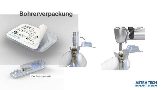 Bohrerverpackung Zum Patent angemeldet