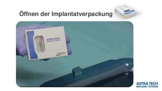 Öffnen der Implantatverpackung