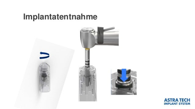 Implantatentnahme