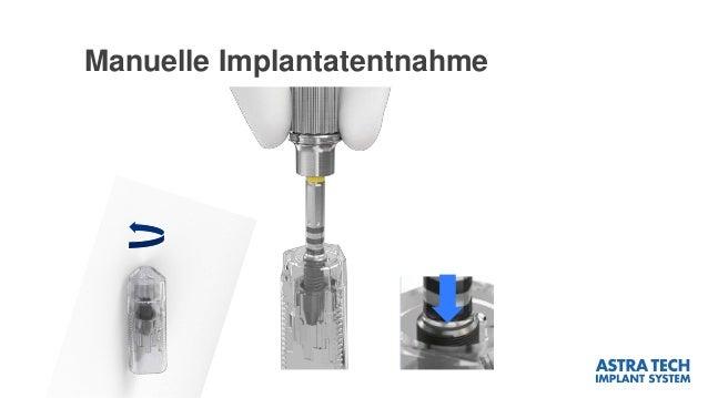 Manuelle Implantatentnahme