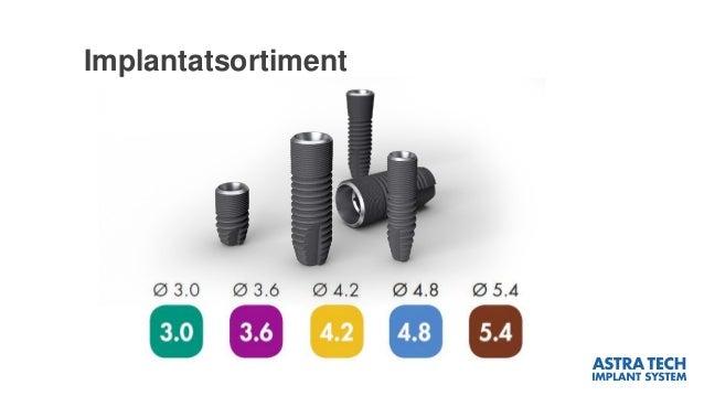 Implantatsortiment