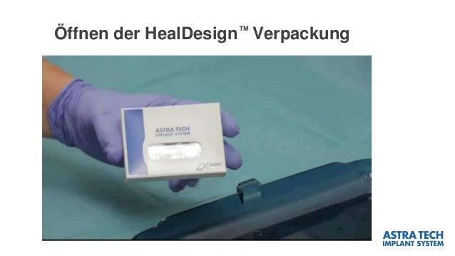 Öffnen der HealDesign™ Verpackung