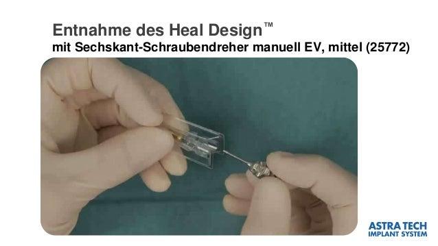 Entnahme des Heal Design™ mit Sechskant-Schraubendreher manuell EV, mittel (25772)