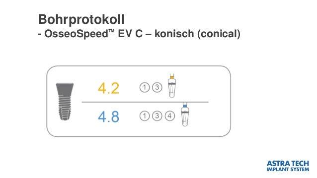 Bohrprotokoll - OsseoSpeed™ EV C – konisch (conical)