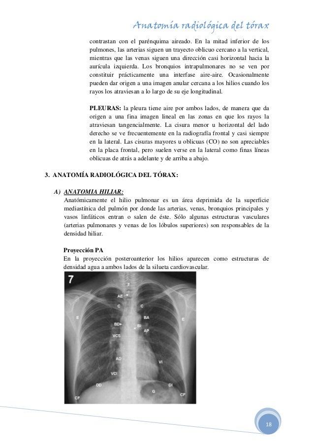 anatomia-radiologica-del-torax-18-638.jpg?cb=1507746221