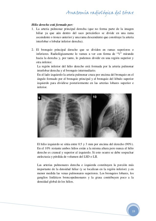 anatomia-radiologica-del-torax-19-638.jpg?cb=1507746221