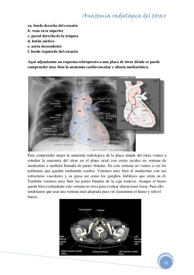 Famoso Anatomía Quirúrgica Y Radiológica Festooning - Anatomía de ...