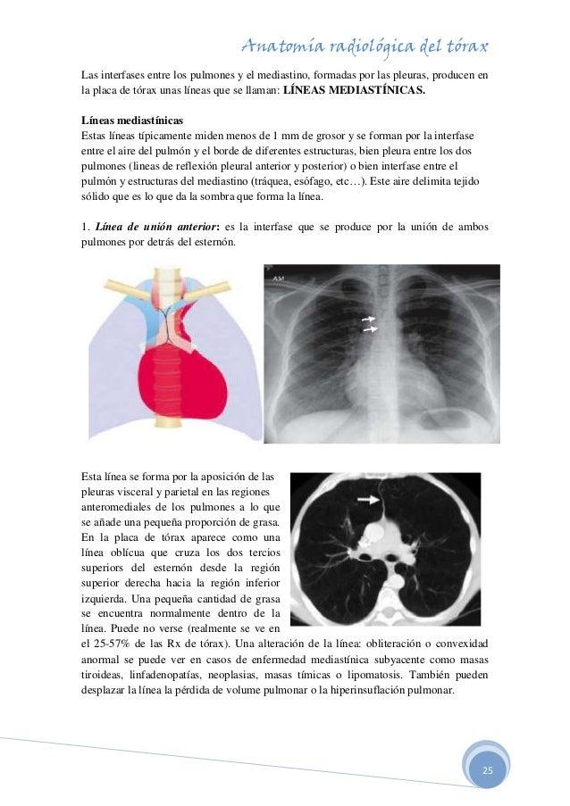 anatomia-radiologica-del-torax-25-638.jpg?cb=1507746221