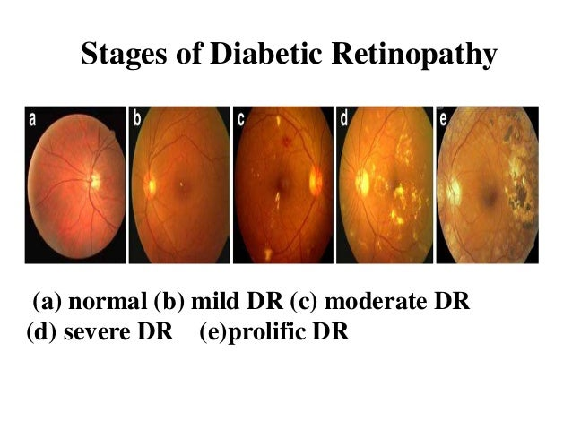 Diabetic Retinopathy Analysis Using Fundus Image