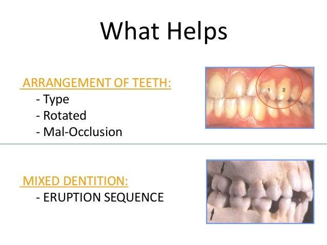 Dental Detectives - Forensic Odontology