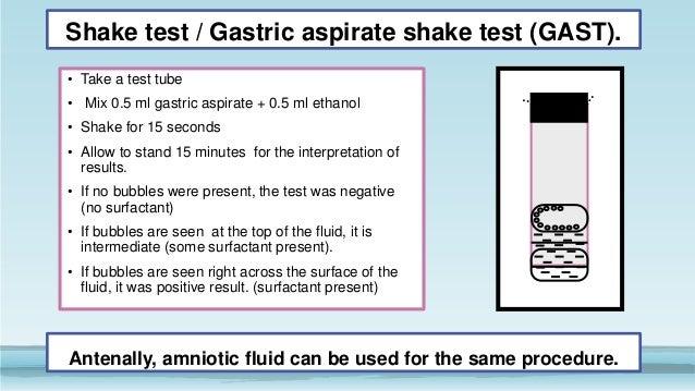 Shake test lung maturity