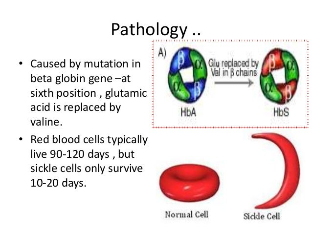 Final Ppt Sickle Cell