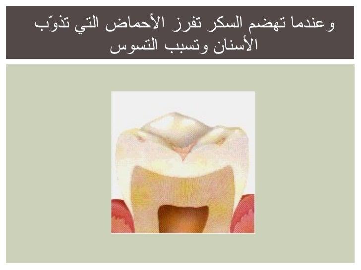 وعندما تهضم السكر تفرز الأحماض التي تذوّب الأسنان وتسبب التسوس
