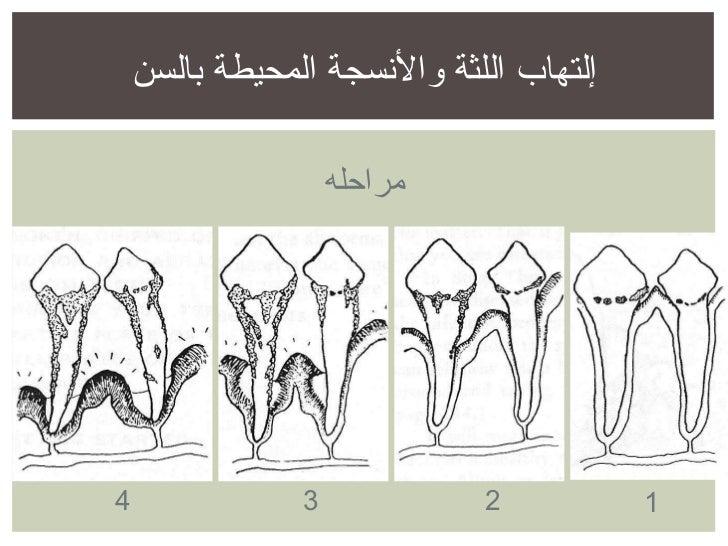 مراحله 1 2 3 4 إلتهاب اللثة والأنسجة المحيطة بالسن