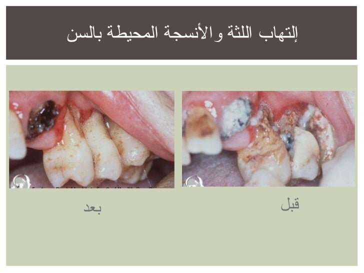إلتهاب اللثة والأنسجة المحيطة بالسن قبل بعد