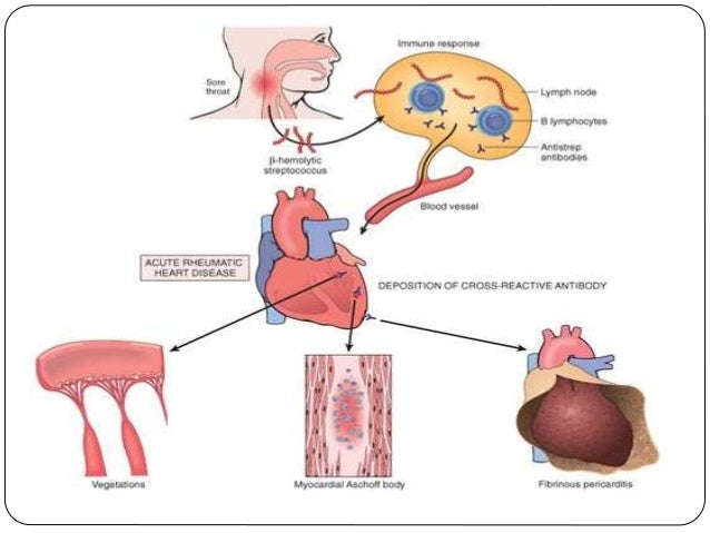 Rheumatic heart disease major manifestationscontd ccuart Choice Image