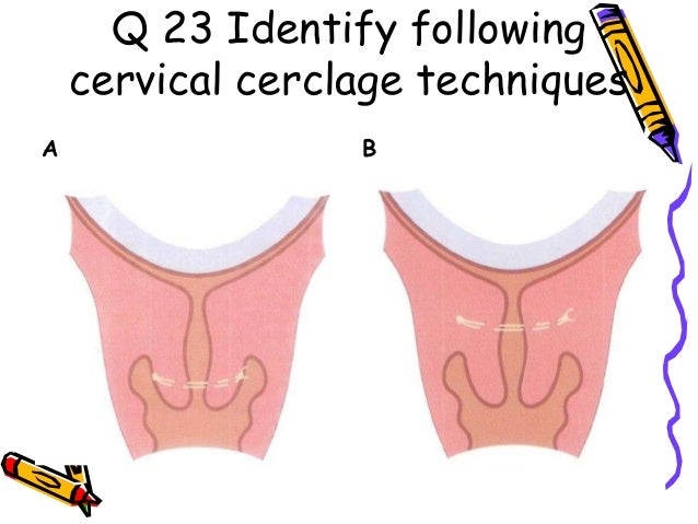 a. Post Coital Test- day 12-13 in a regular 28 day cycle. b. Progesterone levels to detect ovulation – Day 21 in a 28 day ...