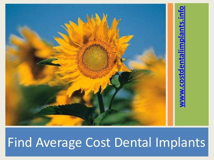 www.costdentalimplants.infoFind Average Cost Dental Implants