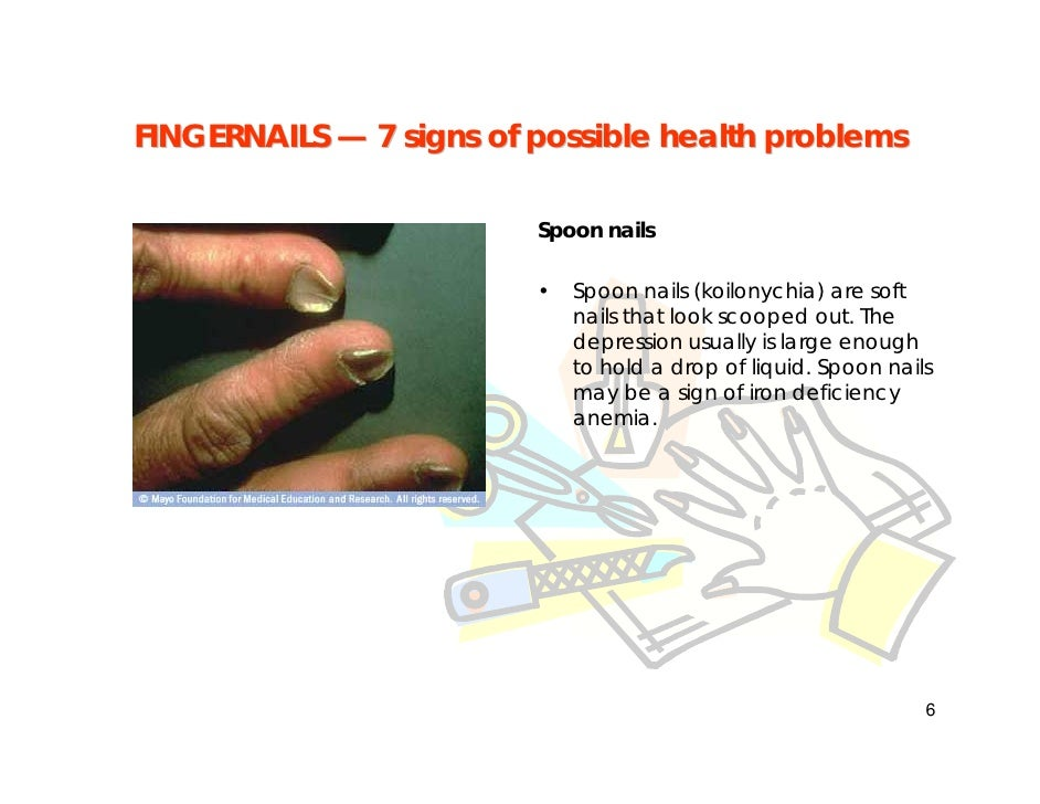 Fingernail Problems How To Tell