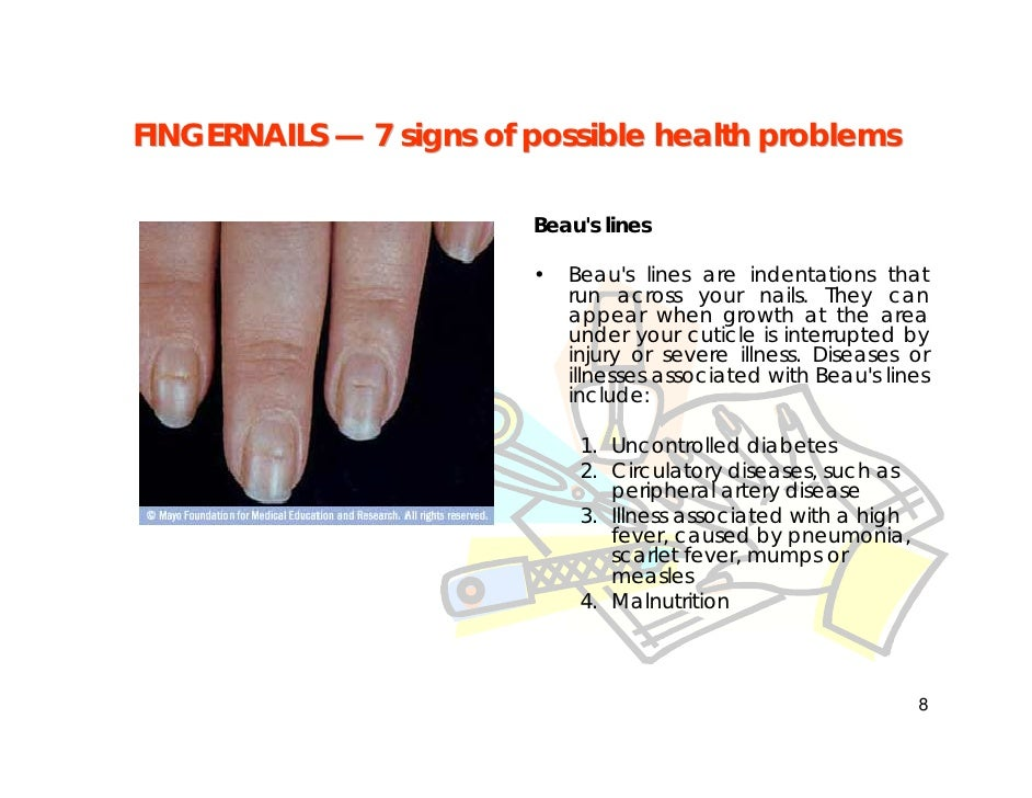 Fingernail Problems - how to tell