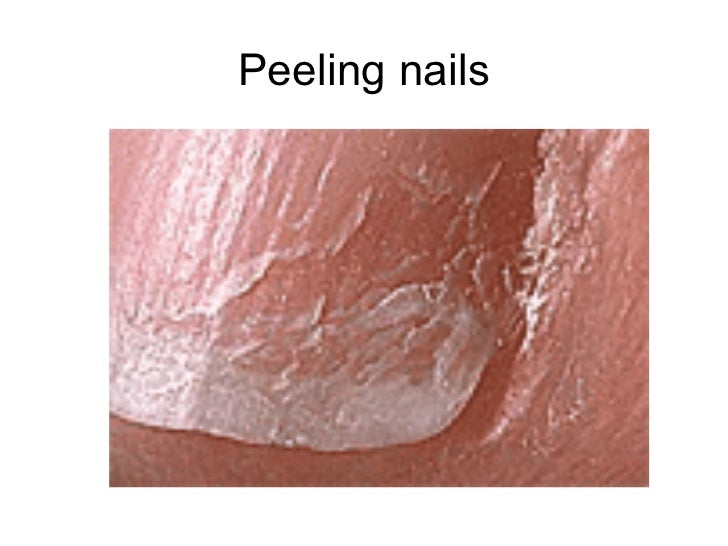 Fingernails And What They Reveal 1