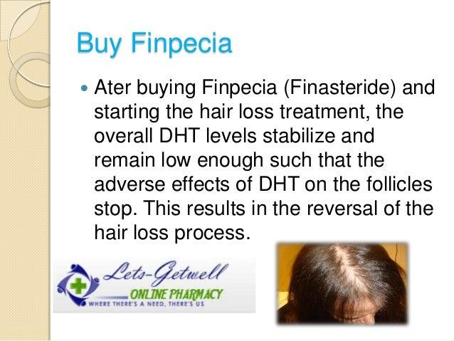 Finpecia Lowest Price
