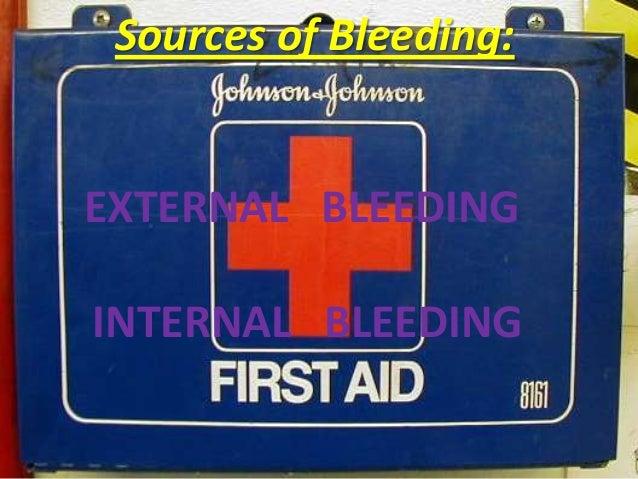 First aid bleeding 2012 Slide 3