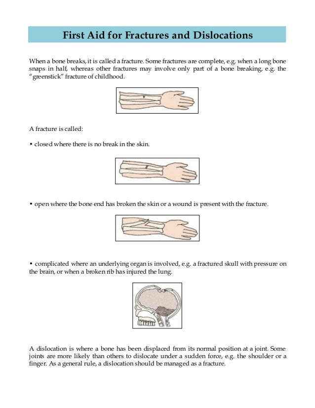 First Aid For Fractures And Dislocations Whs First Aid Kits