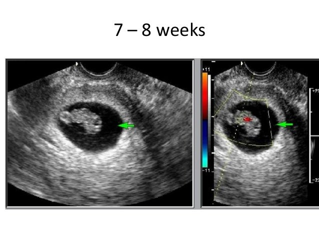 First trimester ultrasound measurements dating and guidelines