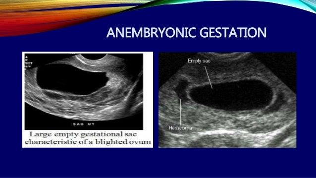 First trimester ultrasound Dr  Muhammad Bin Zulfiqar
