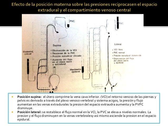  Posición supina: el útero comprime la vena cava inferior. (VCI) el retorno venoso de las piernas y pelvis es derivado a ...