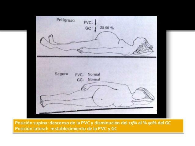 Posición supina: descenso de la PVC y disminución del 25% al % 50% del GC Posición lateral: restablecimiento de la PVC y GC