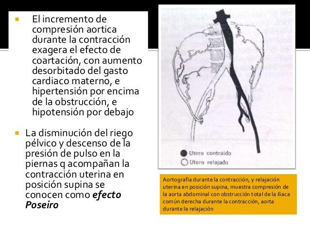  El incremento de compresión aortica durante la contracción exagera el efecto de coartación, con aumento desorbitado del ...