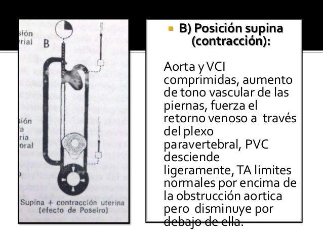  C) Posición supina (relajación): Vena cava seriamente comprimida, ligera compresión aortica, el aumento del tono vascula...