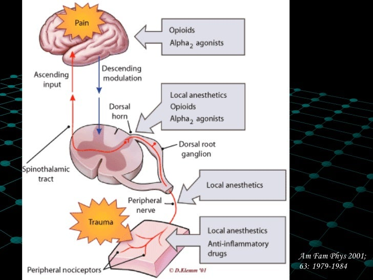 fisiologia-del-dolor-27-728.jpg?cb=1371971366