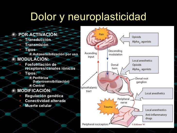 fisiologia-del-dolor-28-728.jpg?cb=1371971366