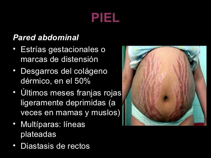 PIEL <ul><li>Pared abdominal  </li></ul><ul><li>Estrías gestacionales o marcas de distensión  </li></ul><ul><li>Desgarros ...